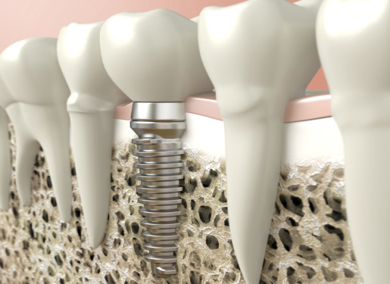 Implantalogy Certification