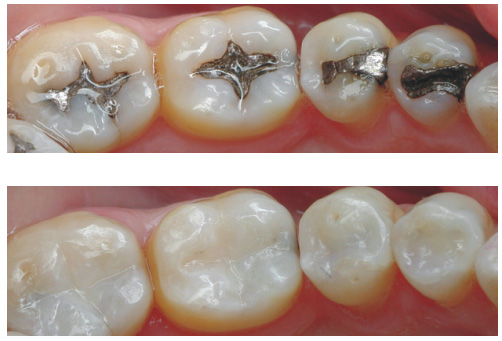 BEST CLINICAL METHODS TO AVOID POST OP SENSITIVITY IN COMPOSITE FILLINGS