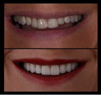 smile designing pre n post